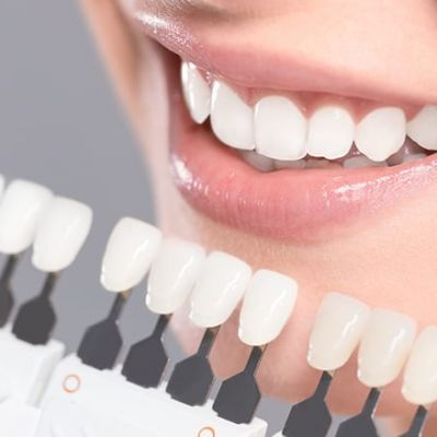 3-in-1 Teeth Whitening Special R1700