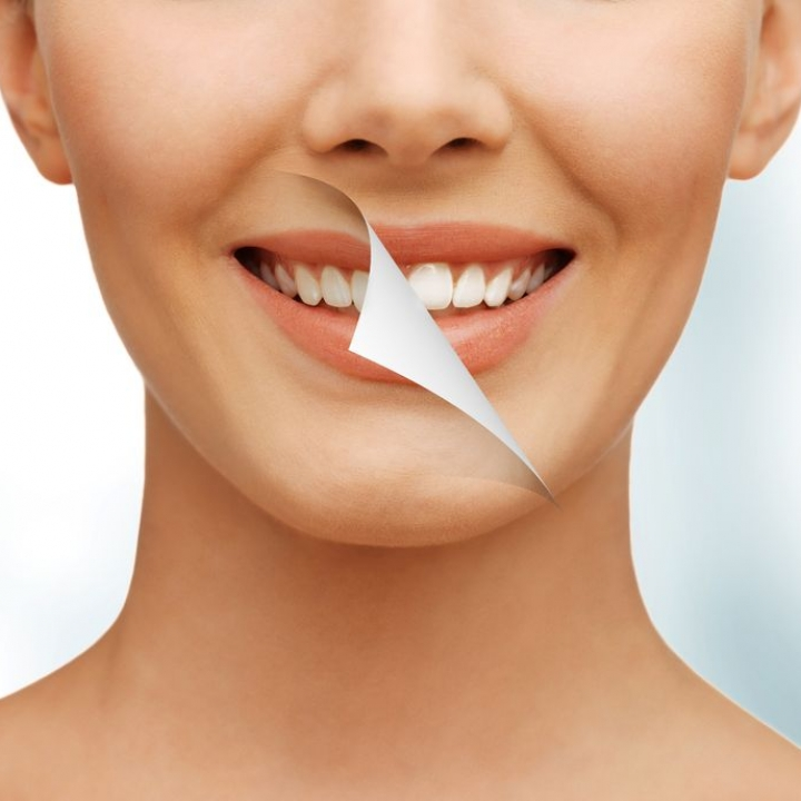 Full Cosmetic Smile Consultation