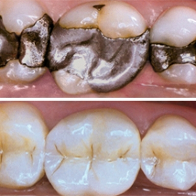 Composite Resin Fillings