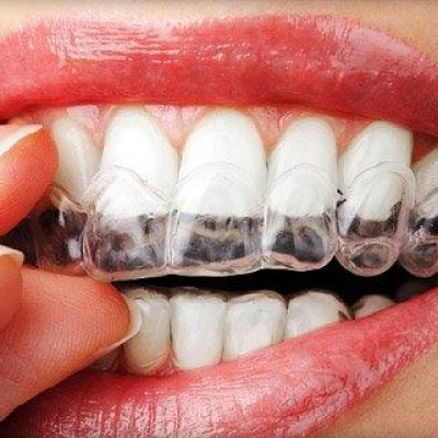 Custom Tray Teeth Whitening