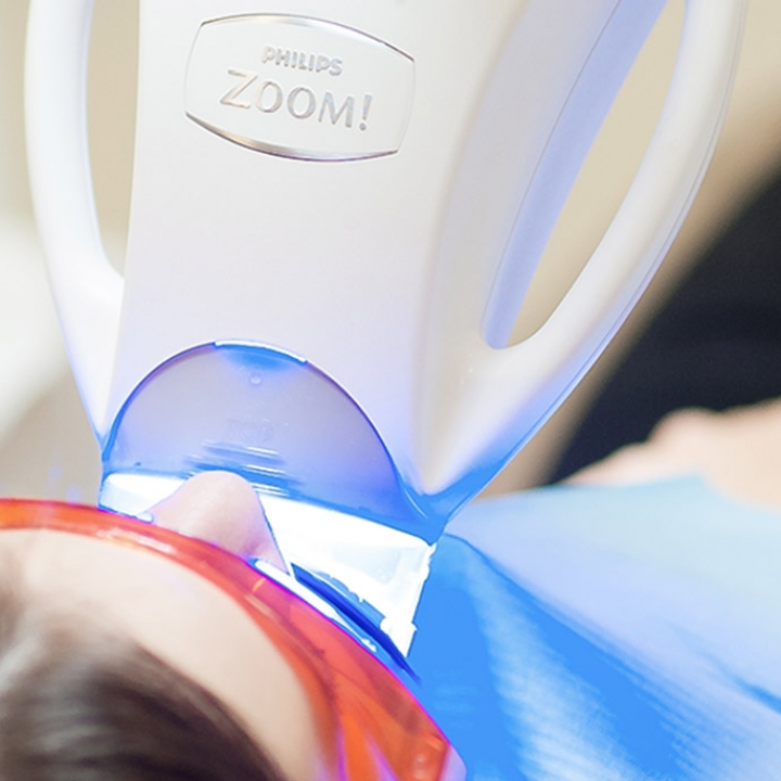 ZOOM Whitening (with light)
