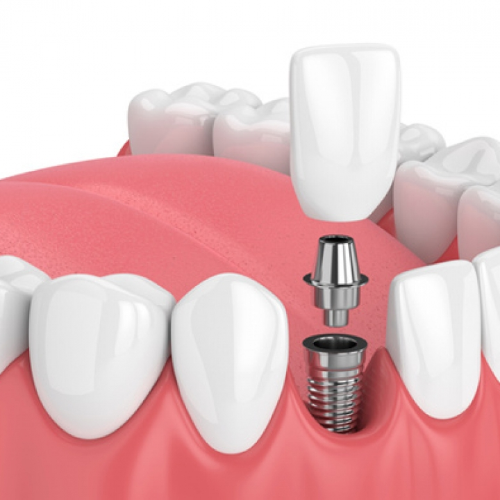Restoring the Implant